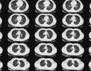 lung-cancer-scans-are-recommended-for-people-50-and-older-with-shorter-smoking-histories